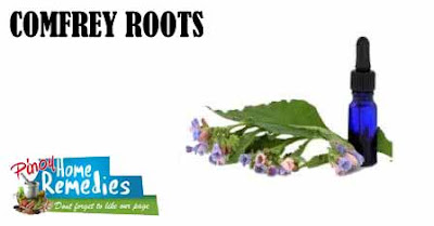 Home Remedies For Black Eye: Comfrey Roots