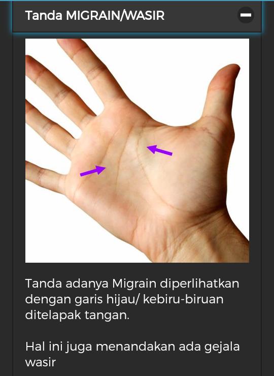 Diagnosa Penyakit Dari Telapak Tangan Dan Herbal Hni Hpai