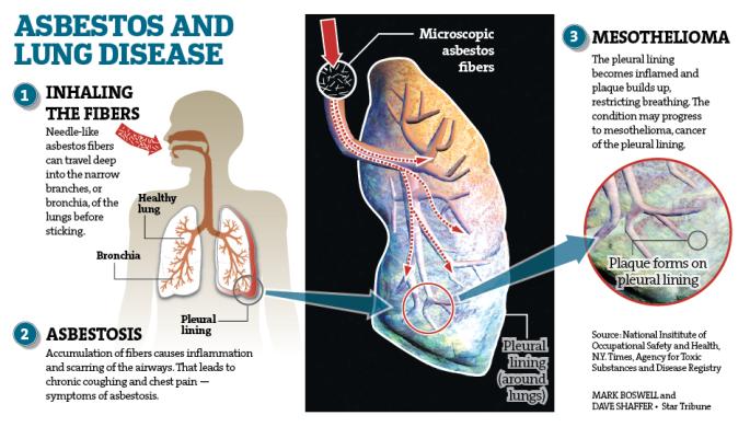 Asbestos Lung Disease