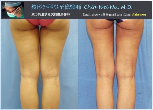 ▲大腿抽脂用於自體隆乳,左為術前,右為術後(台北凡登隆乳吳至偉醫師)