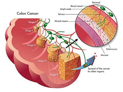 5 Jenis Kanser Utama Yang Biasa Menyerang Kaum Adam
