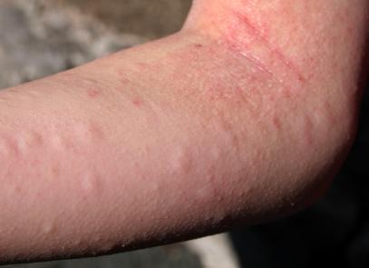 alergik alahan