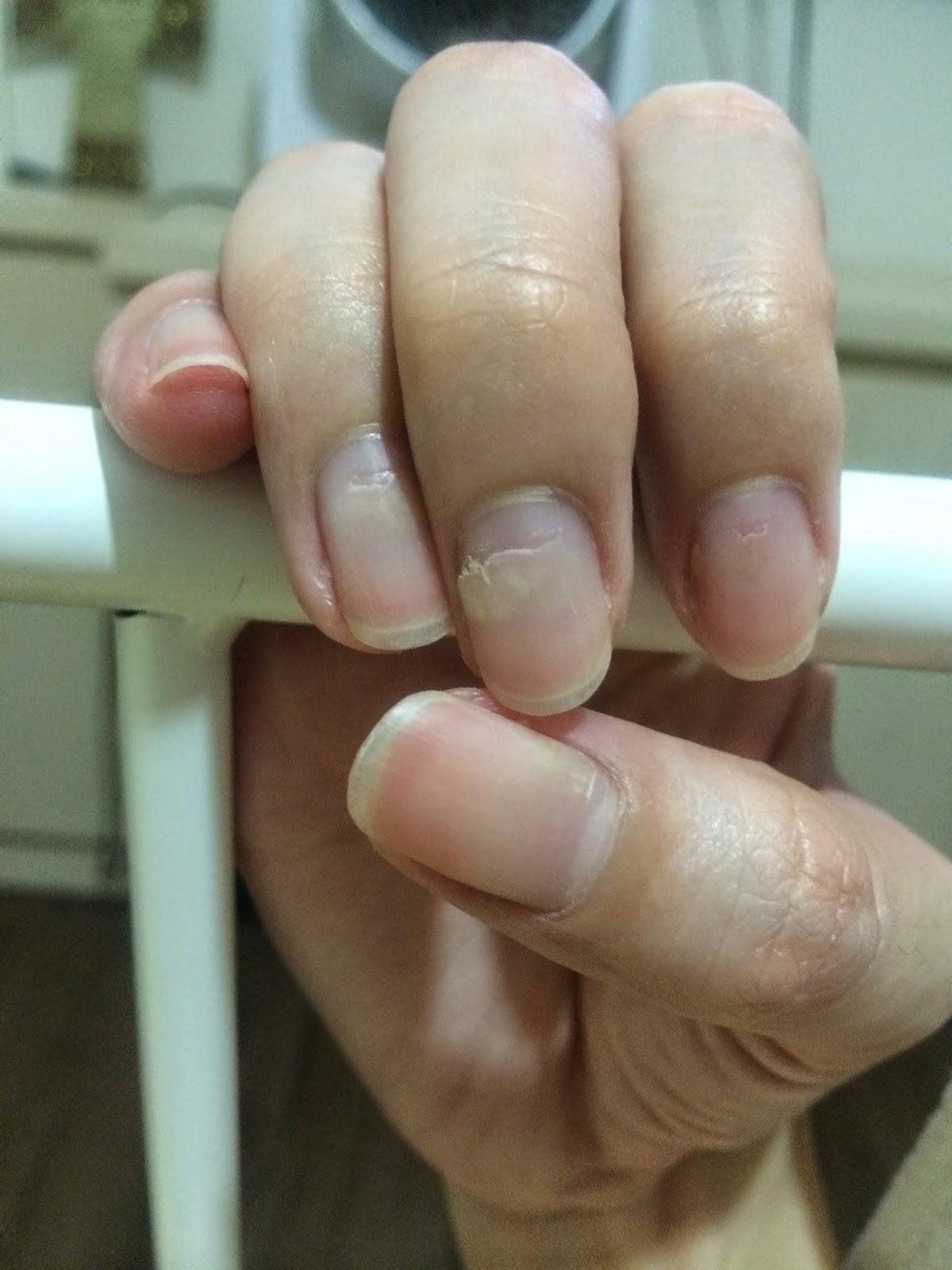 The Dettol Diaries: Peeling Fingernails After HFMD