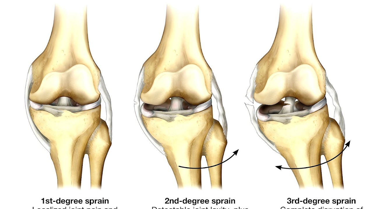 Fibular Collateral Ligament Pain Topsimages