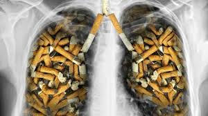 Has quit with lung cancer should be examined or not?