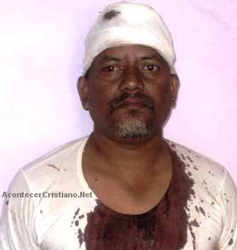 Pastor agredido por predicar el Evangelio
