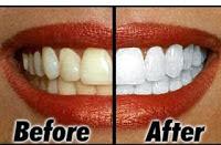 Gigi Sebelum dan Sesudah Perawatan