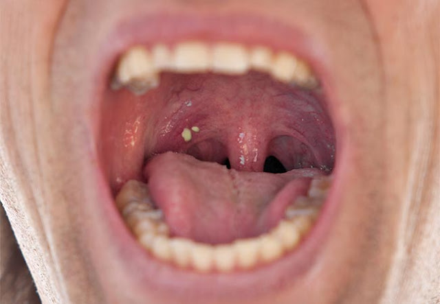 LOOK: A Doctor Found This In Her Mouth And Discovered Why She Has Bad Breath!