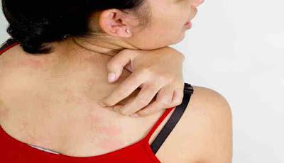 Penyakit alergi air
