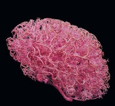 شبكة-الأوعية-للدماغ