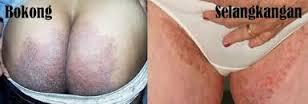 obat penyakit jamur kulit gatal pada selangkangan dan bokong
