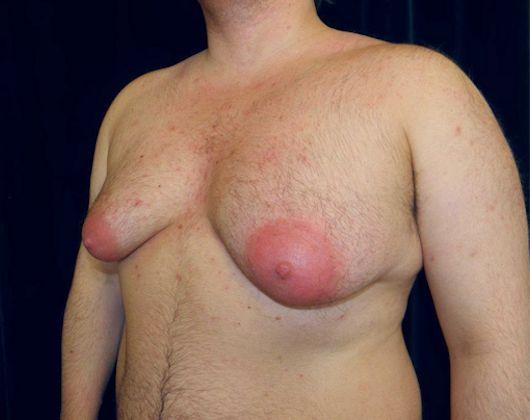 Mamoplastia remove o excesso de mama