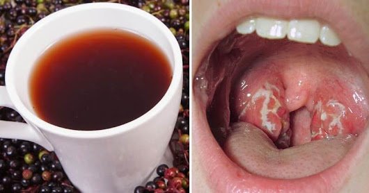 These Are The 10 Best Natural Remedies Against Strep Throat!