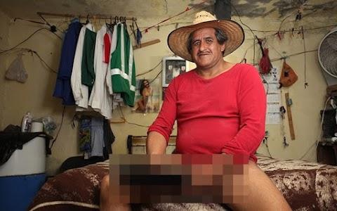 Com pênis de 48 centímetros, homem não consegue emprego por conta de limitações