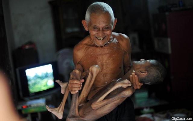 Syifa, menderita kondisi langka yang menyebabkan tubuhnya menjadi sangat kurus, sampai-sampai hanya menyisakan kulit dan tulang belulang