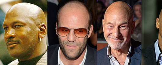 5 Famous Men Who Make Balding Look Great