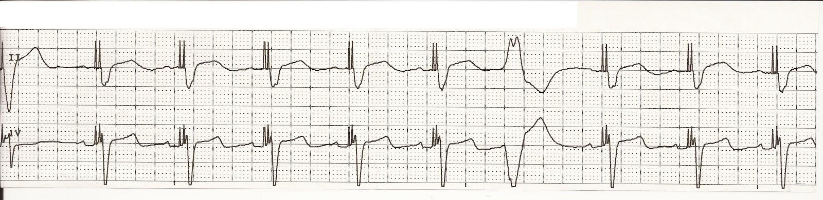 Float Nurse: EKG Rhythm Strip Quiz 56: Paced Rhythms