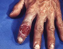 chancre-lesi-primer-sifilis