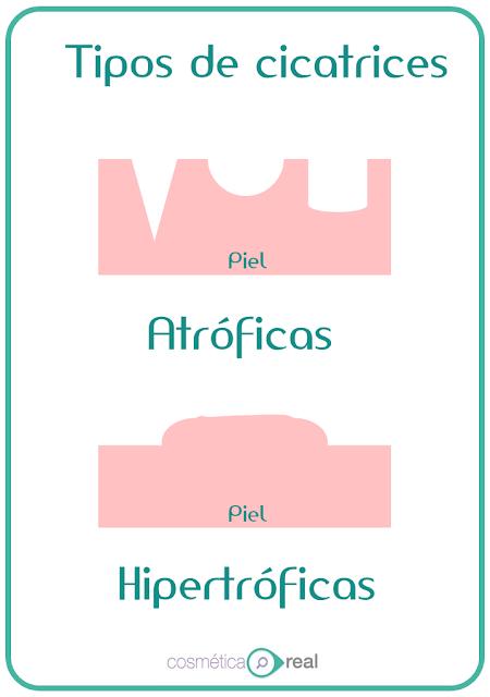 Microperforacion y marcas del acné
