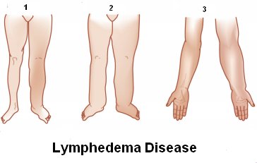By the moisture is your arm or leg thicker Lymphedema: Causes, Symptoms, Treatment And Prevention