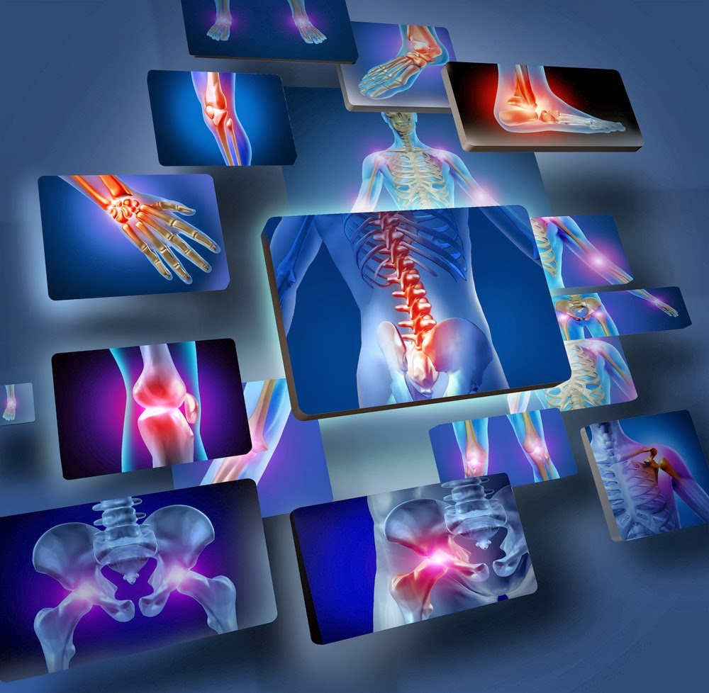 medicament pentru refacerea cartilajului în discul intervertebral)