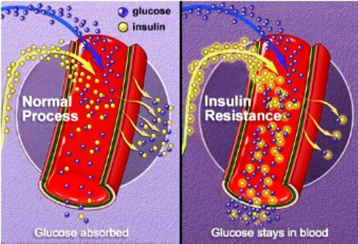 Insulin Resistance In Diabetes Type 2