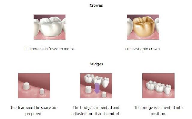 Dental Crowns and Tooth Bridges work