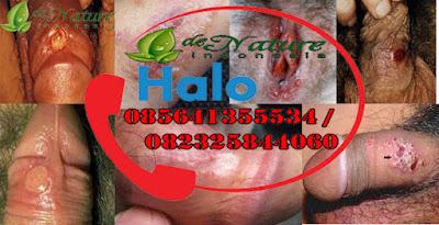 Pencegahan Penyakit Sifilis Dan Gonore