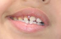 """<Imgsrc =""""incisivo-temporal-golpeado.jpg"""" width = """"220"""" height """"141"""" border = """"0"""" alt = """"Golpe en los dientes de leche >"""