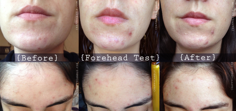 Jojoba Oil Before and After :: The Acne Experiment