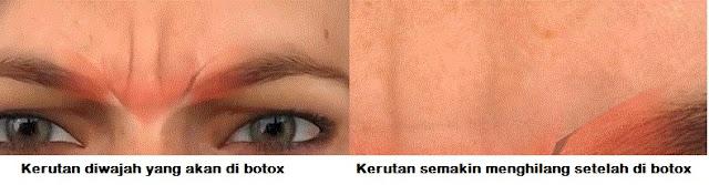 Wajah sebelum dan sesudah di Botox