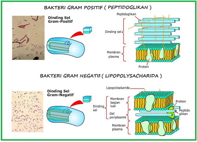 Struktur dinding bakteri Gram positif dan bakteri Gram negatif
