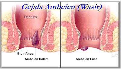Gejala Ambeien - JUAL DI Palembang SALEP WASIR DE NATURE (TANPA OPERASI)