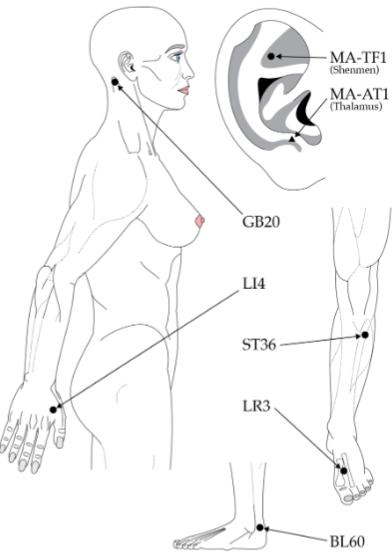 図:くも膜下出血の頭痛に効くツボの位置