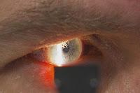 """ماذا تعرف عن مرض """"أنفلونزا العيون""""؟"""