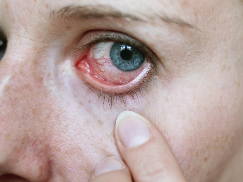 Cara Menyembuhkan Mata Merah
