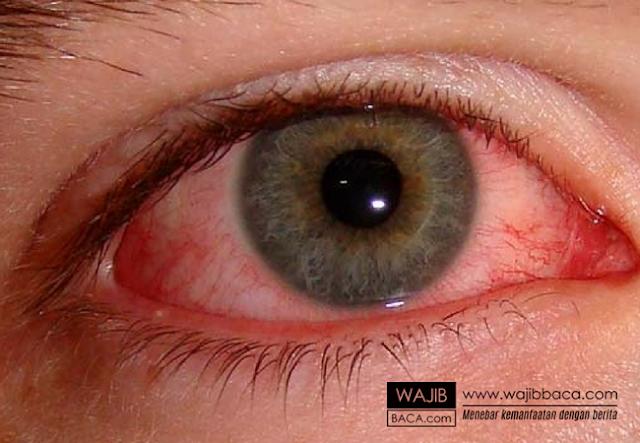 Hati-hati, Penelitian Menunjukkan Mata Bisa Buta Karena Stres Kerja