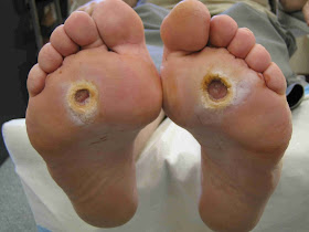 Study Medical Photos Introduction To Diabetic Foot