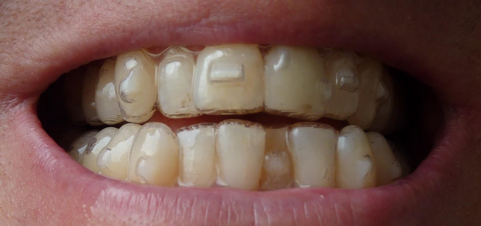 kræft i tungen