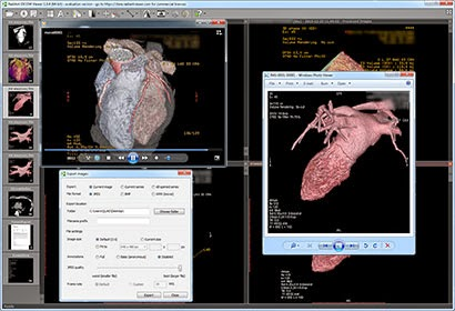 Madison : Dicom viewer download crack