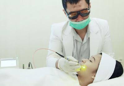 cara menghilangkan bekas luka medis laser