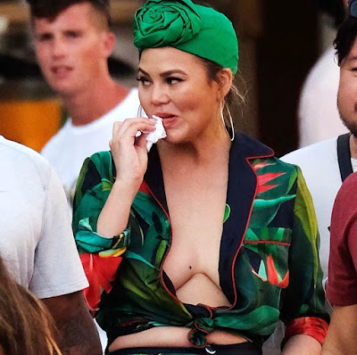 Are chrissy teigen boobs real