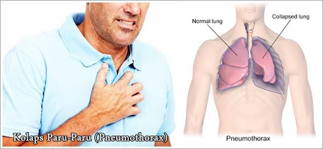 Pengobatan Kolaps Paru-Paru (Pneumothorax) Secara Herbal Terbukti Ampuh