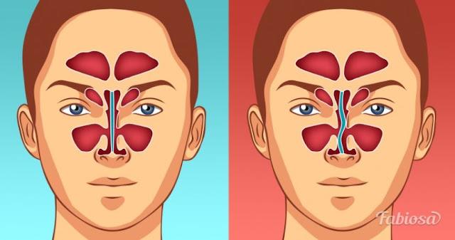 6 признаков искривлённой носовой перегородки