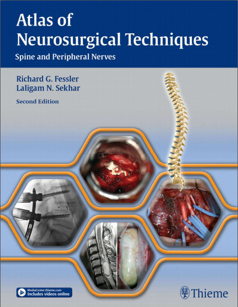 Neurosurgery Books Pdf Free Download