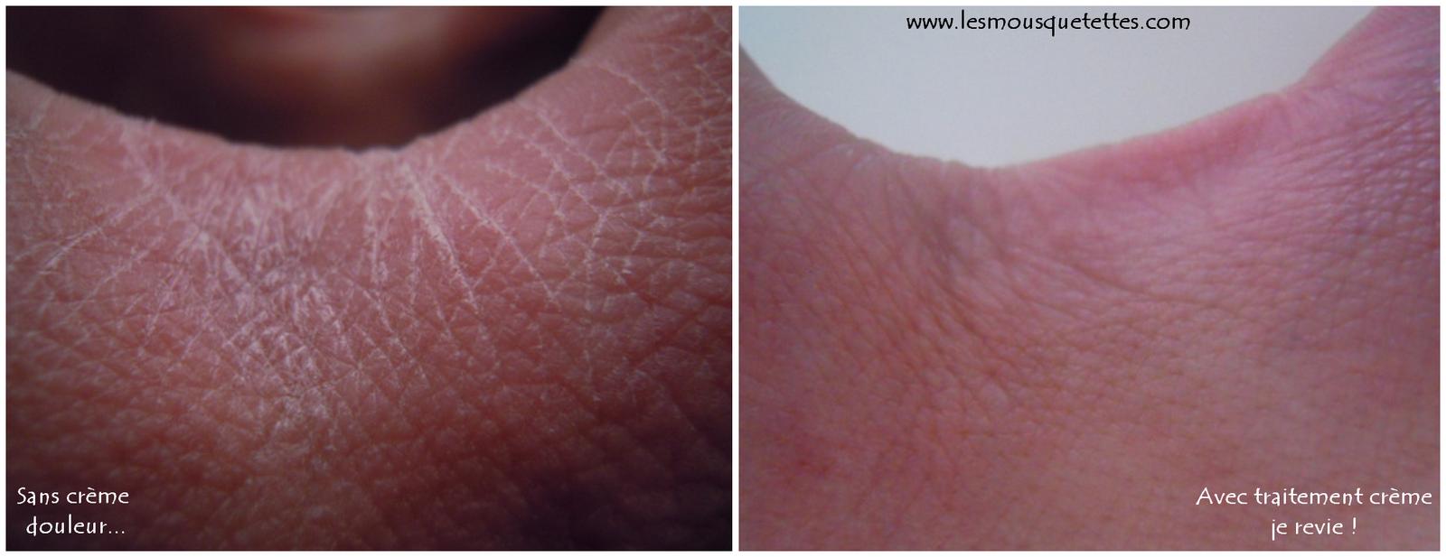 Avant/après Crème mains nourrissante Marilou BIO - Les Mousquetettes©