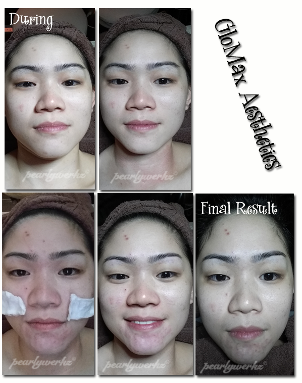 Review: My Hydrabrasion Facial experience with GLOMAX