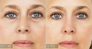olheiras antes e depois