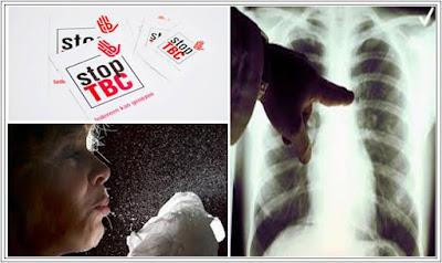 Tuberkulosis Yang Tahan Dengan Obat
