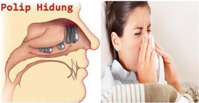 Cara Mengobati Penyakit Polip Hidung